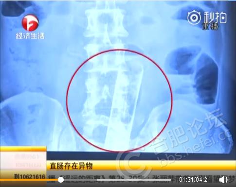 zhizhang5.png