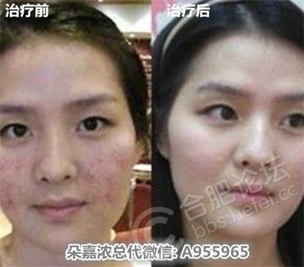 激素脸面部如何保湿?图片